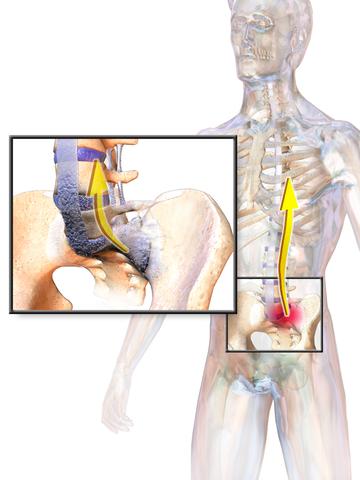 Ankylosing Spondylitis | Pictures, Causes, Symptoms, Diagnosis & Treatments
