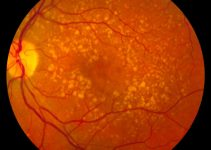Intermediate age related macular degeneration
