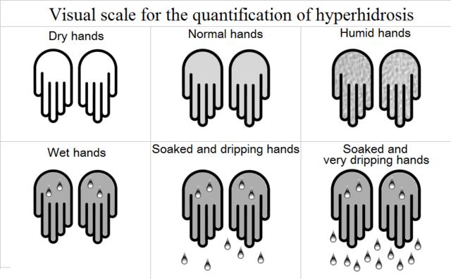 Hyperhidrosis | Causes, Symptoms, Diagnosis & Treatments